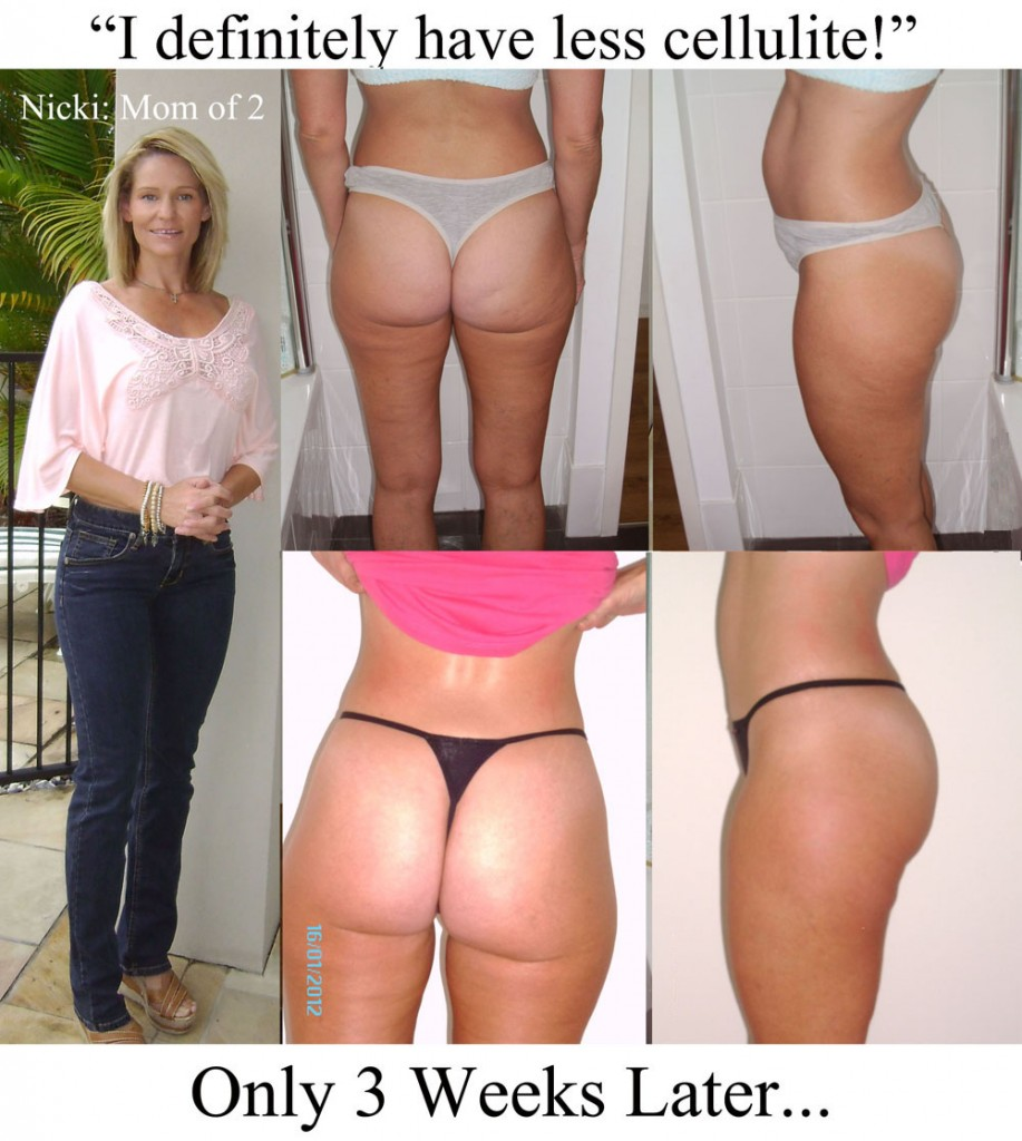 Nickis proof of cellulite reduction after 3 weeks